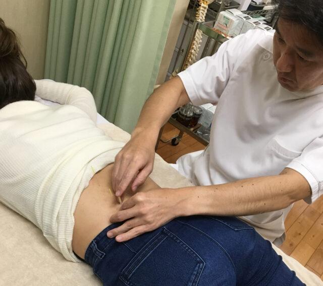 腰の鍼治療